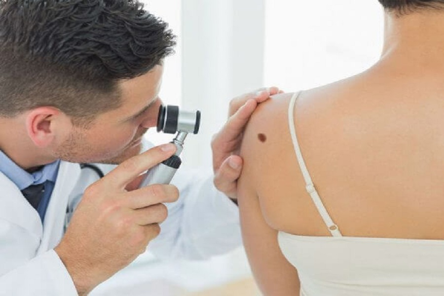 Do You Know the Facts About Melanoma?
