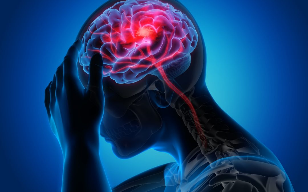 Time is Brain. BE FAST to Recognize Stroke Signs!