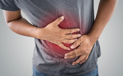 Simple Lifestyle Modifications to Reduce Your Risk of Colon Cancer