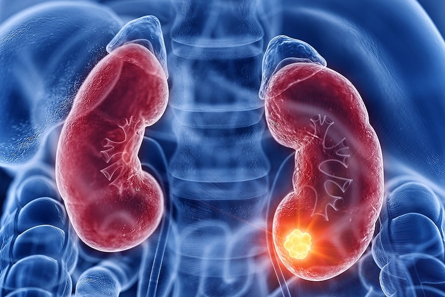 Understanding Kidney Cancer: Its Signs, Symptoms & Line of Treatment